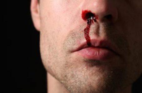 गर्मी में नाक से खून आने पर हैं परेशान,तो जाने ये  घरेलू उपाय