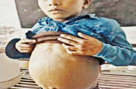 बच्चेके पेट में भ्रूण देख डॉक्टरों के भी होश उढ़े